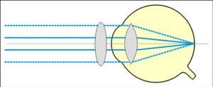 astigmatisme Corrigé